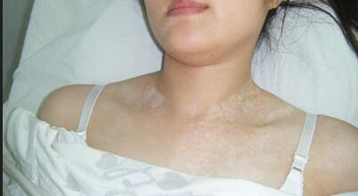 适合女性白白患者的疗法