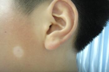 武汉白癜风医院细数白癜风的发病因素有什么